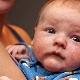 Staphylococcus aureus nei bambini