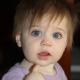 Anisocoria - diversi alunni di taglia in un bambino