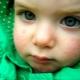 Cosa succede se c'è un'eruzione sul viso di un bambino?
