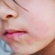 Cosa succede se c'è irritazione o eruzione cutanea intorno alla bocca del bambino?