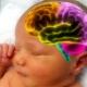 ความเสียหายของสมองอินทรีย์ (encephalopathy) ในเด็ก