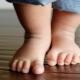 Øvelser for valgus foddeformitet hos børn