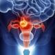 Malattie dell'utero in termini di psicosomatica