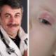 Dr Komarovsky over de behandeling van chalazion bij kinderen