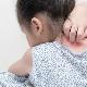 Cause psicosomatiche di psoriasi nei bambini e negli adulti