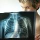 Psicosomatica della polmonite nei bambini e negli adulti