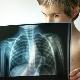 Psicosomatica dei problemi polmonari nei bambini e negli adulti