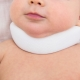 Segni e sintomi di torcicollo nei neonati e nei neonati