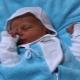 غالاكتوزيا عند الأطفال حديثي الولادة والأطفال
