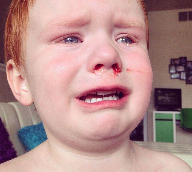 Hvorfor blør man neseblod
