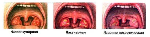 Halsen sår i Mistanke