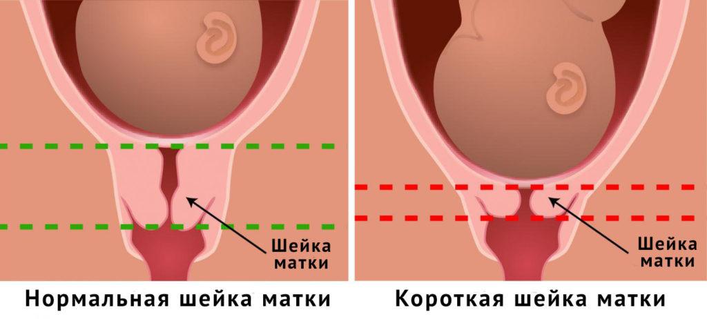 Col uterin scurt