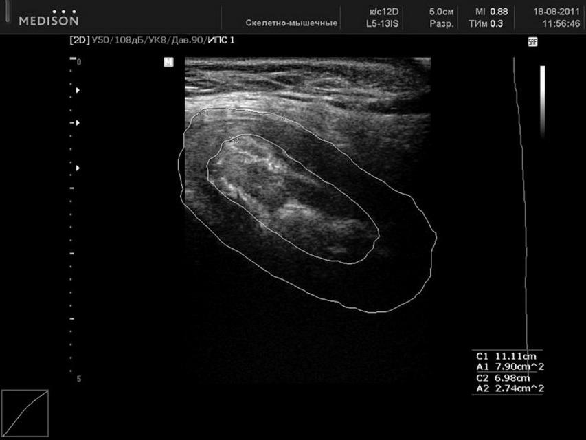 Ultraschall Während Periode