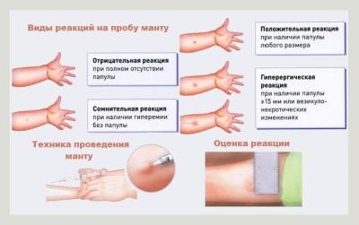 การประเมินปฏิกิริยาของ Mantoux