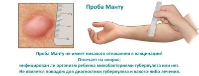 วิธีการทดสอบ Mantoux