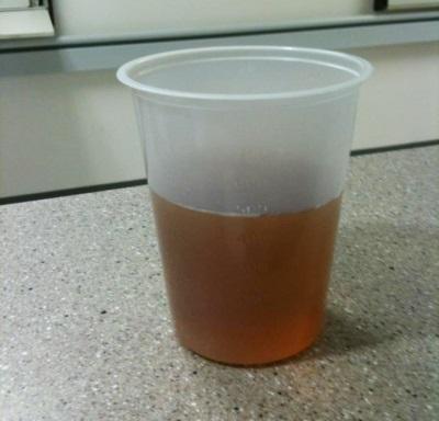 Air kencing merah jambu