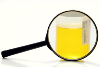 Ujian kekeruhan air kencing di rumah