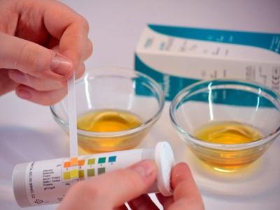 Jalur ujian untuk menentukan aseton di dalam air kencing