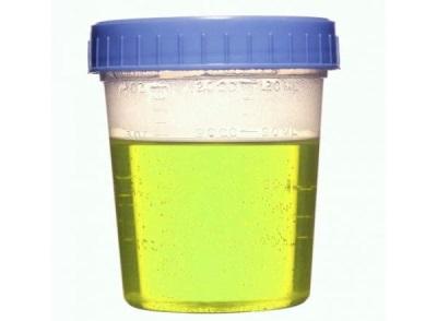 Groene urine bij een kind
