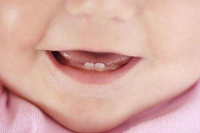 Baby dentizione