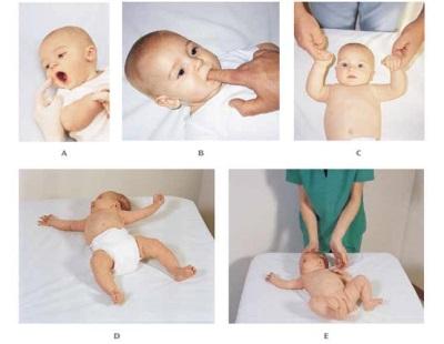 Riflessi nel neonato