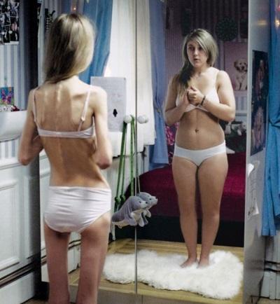 Anorexia sa isang teen girl