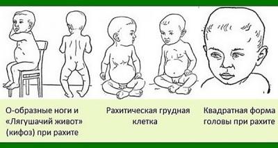 การขาดวิตามินดีในทารก