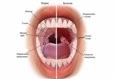Halsschmerzen Nach Magenspiegelung