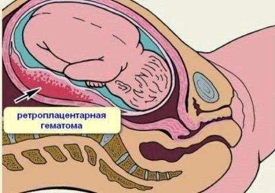 Erschrecken In Der Schwangerschaft